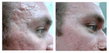 plexr soft surgery Plexr Dermatology: een nieuwe generatie Afbeelding1 1