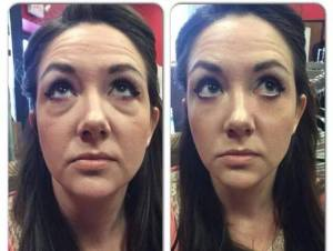 Jeunesse-Instantly-Agelesss-Before-After1