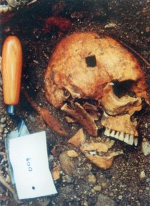 A victim of Towton, showing brutal head wounds.