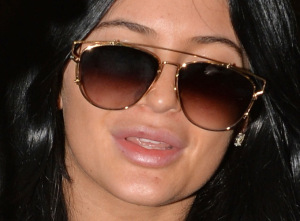 kyliejenner outs her plastic