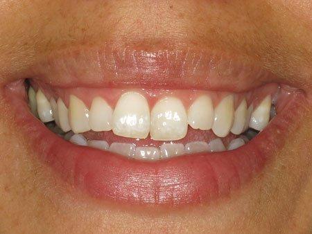 short term orthodontics