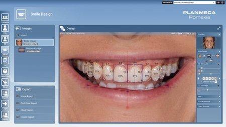 digital smile design software