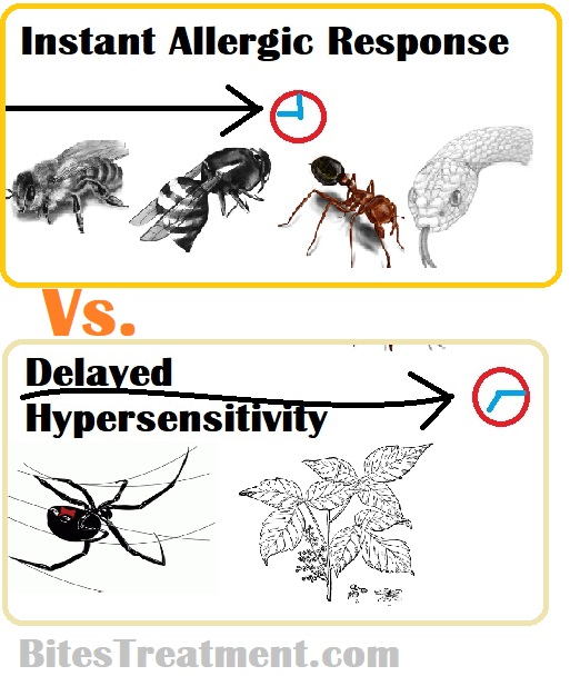 insects causing immediate hypersensitivity vs delayed