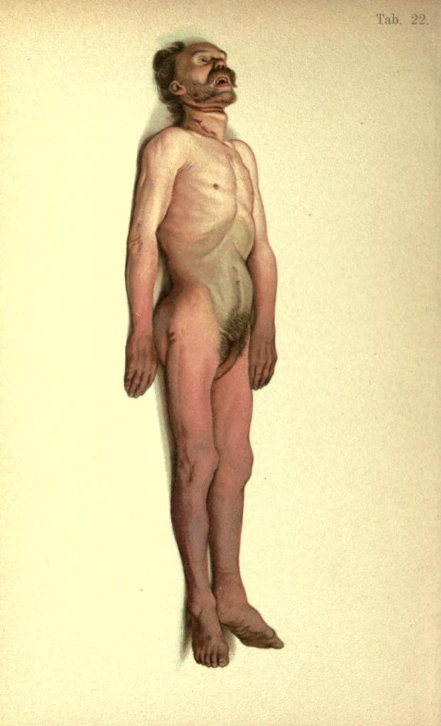 Suicidio per impiccagione; sospensione del corpo per diversi giorni; distribuzione peculiare dell'ipostasi cadaverica.