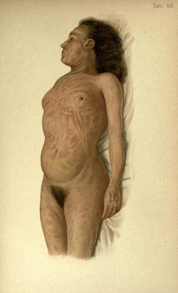Situazione anormale del livor mortis come risultato della posizione del corpo.