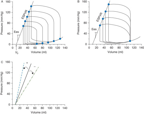 Minimally invasive intraoperative estimation of left