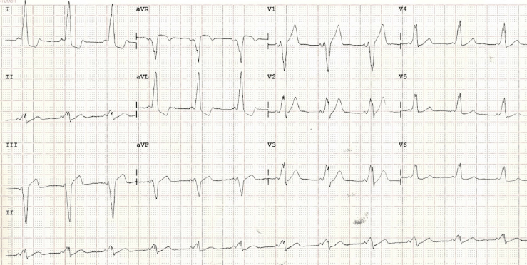 Mahaim fibre tachycardia in a patient with type B Wolff