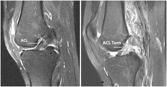 From Snow Orthopaedics. http://snoworthopaedics.com/portfolio/anterior-cruciate-ligament-acl/