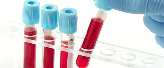 Huffpo Blood Test