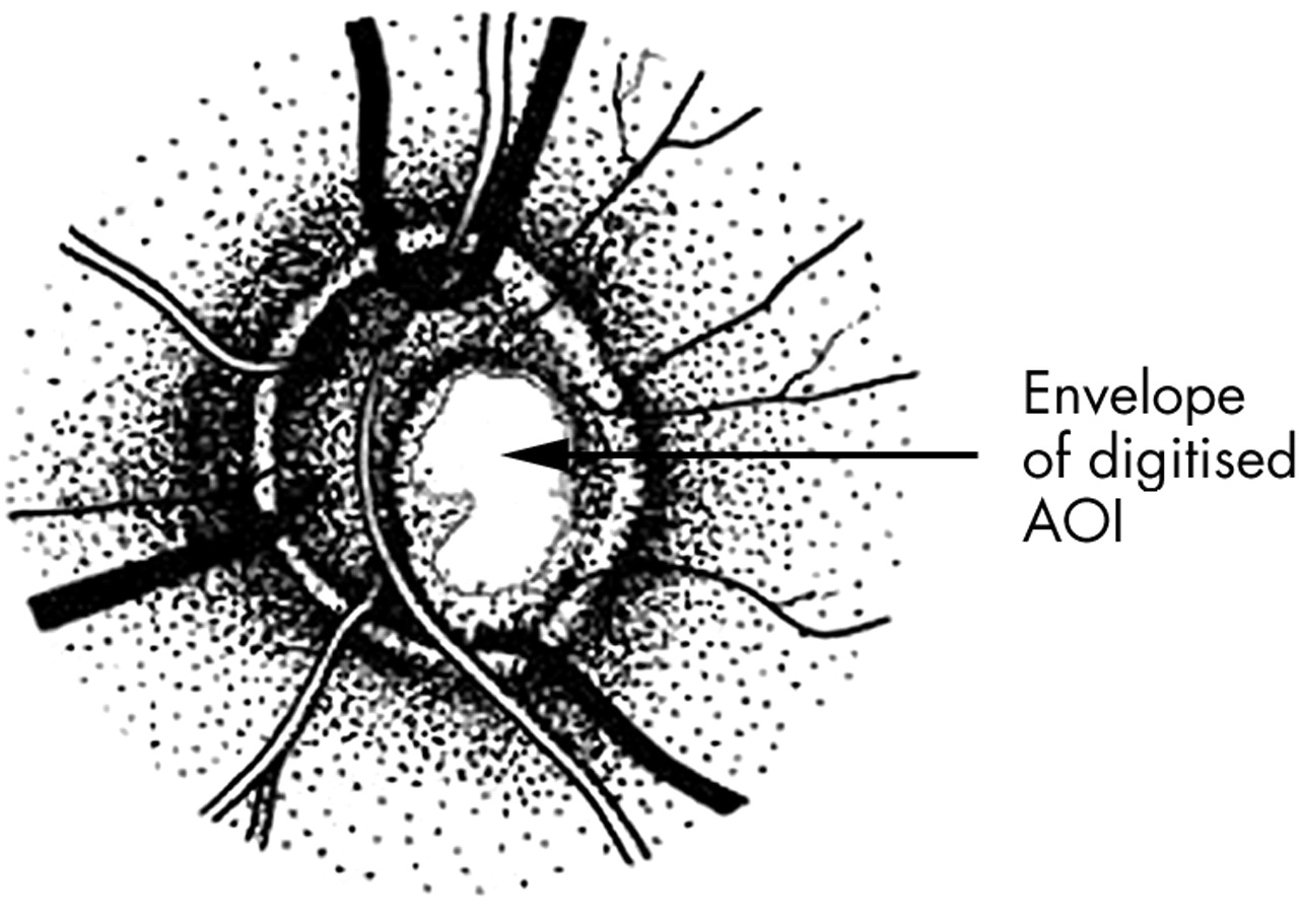 Three dimensional analysis of the lamina cribrosa in