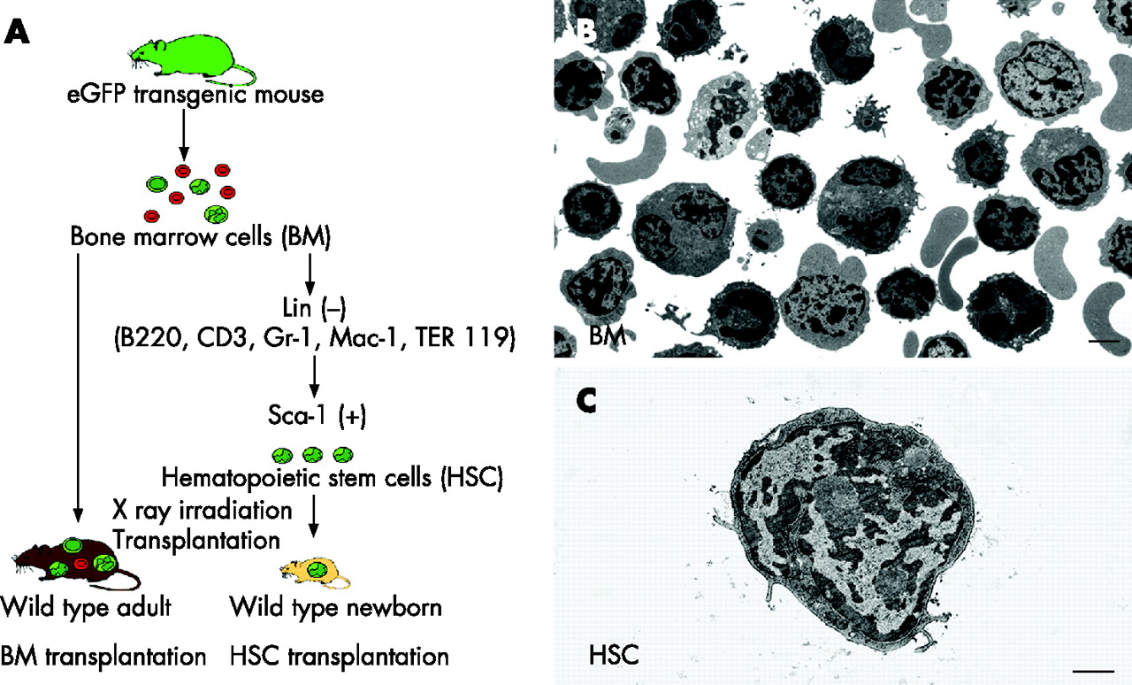 bone marrow cell diagram jacuzzi j 385 wiring identification of resident and inflammatory