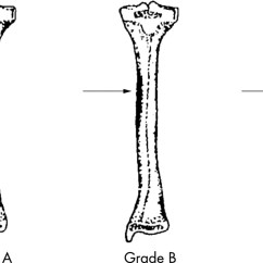 Diagram Of Tibia Stress Fracture Kenwood Ddx6019 Wiring Color 99mtc Mdp Bone Spect In Evaluation The Knee Asymptomatic Download Figure