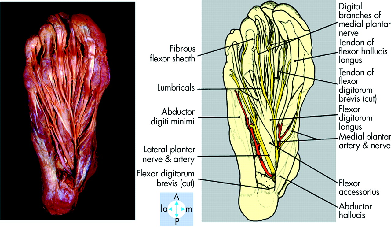 small resolution of lateral plantar nerve injury following steroid injection for plantar fasciitis british journal of sports medicine