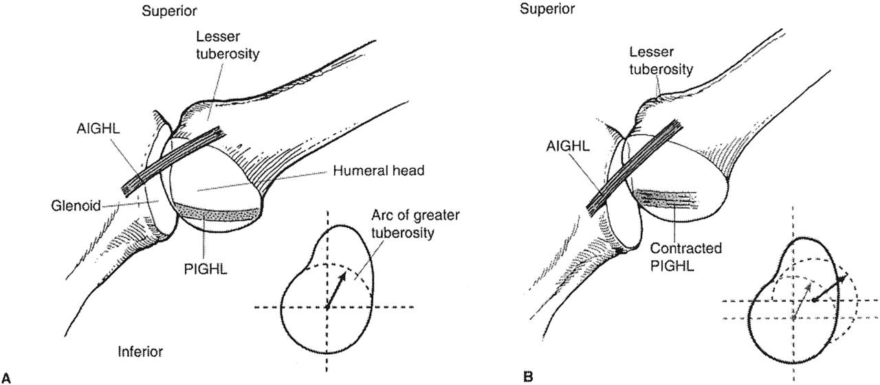 Diagnosis and management of superior labrum anterior