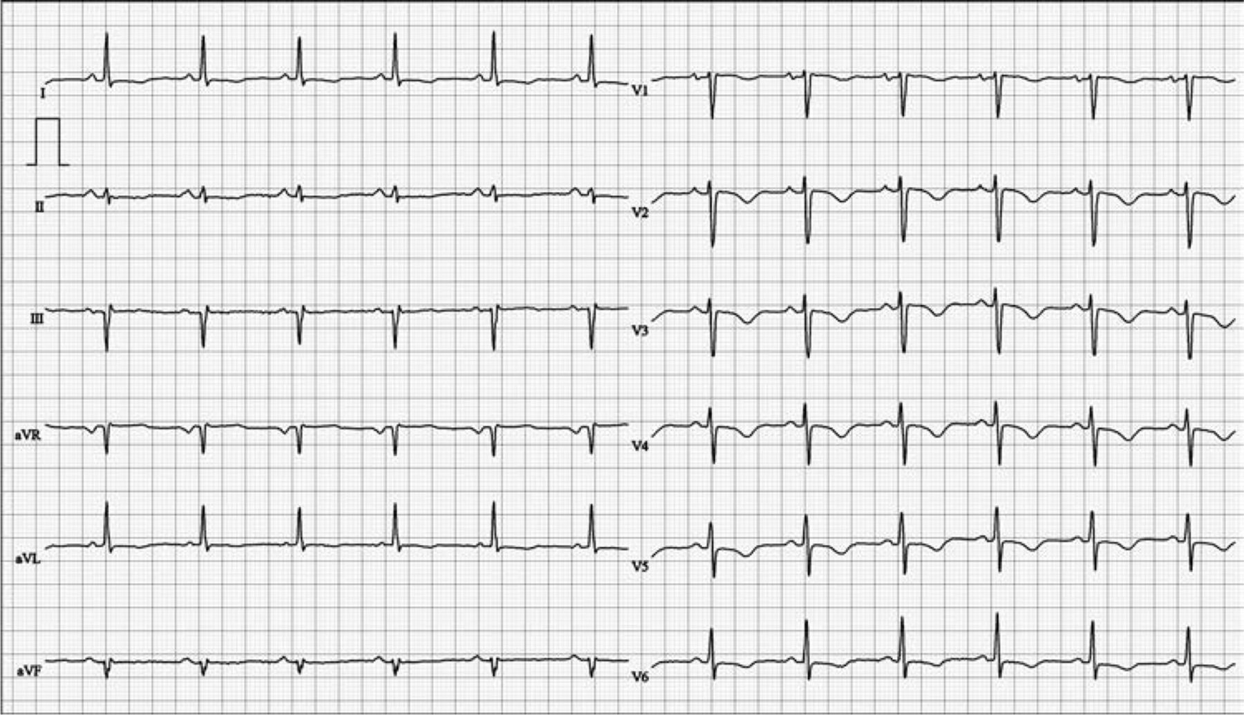 Significance Of Deep T Wave Inversions In Asymptomatic
