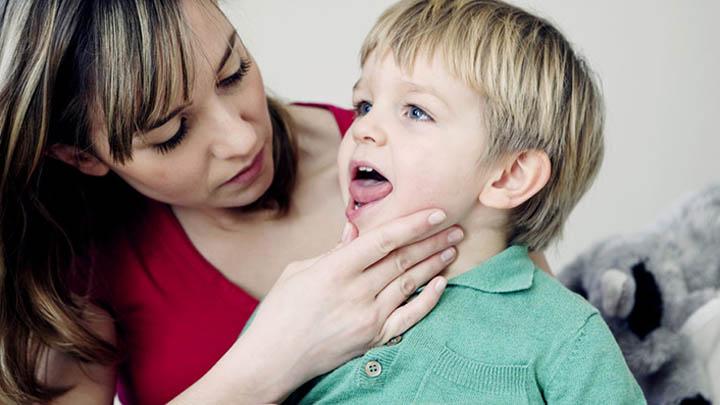 gejala difteri pada anak