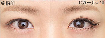 eyelashC