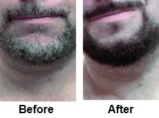 Before Beard Color Amp After Beard Color