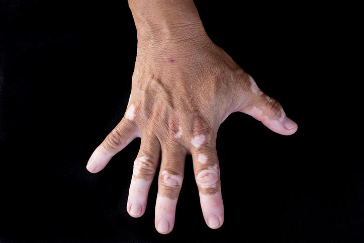 Quadrichrome vitiligo