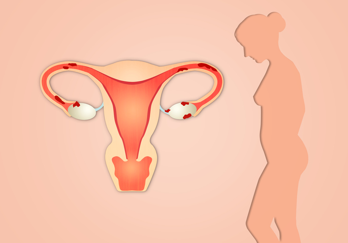 Endometriosis with woman silhouette on pink background