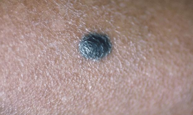 A mole on the skin