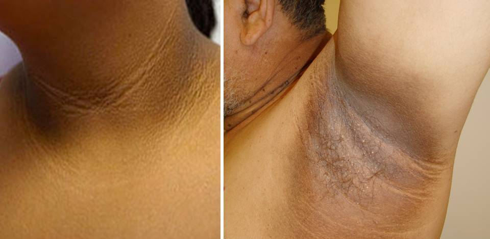 Acanthosis Nigricans Treatment  Blackdoctor-1549