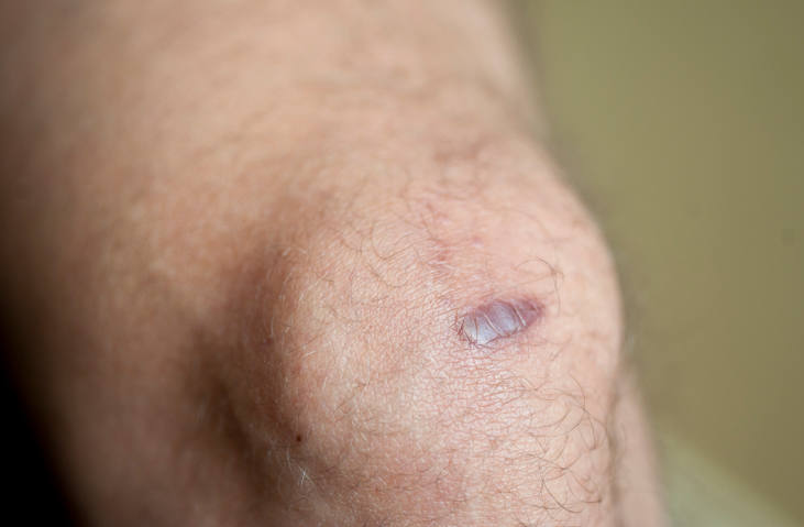 New Treatment Available To Heal Keloid Scars | BlackDoctor