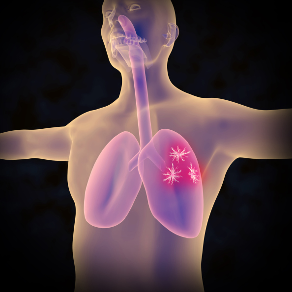 lung cancer human body animation