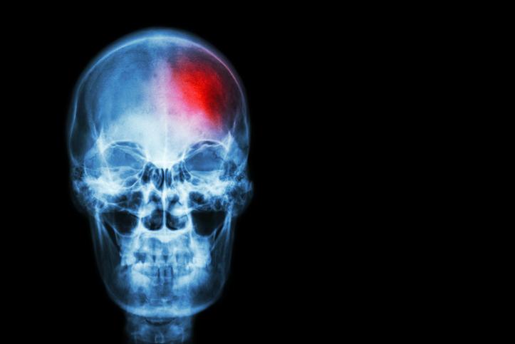 Stroke skeleton x-ray