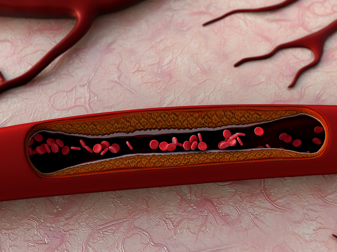 3D illustration of blood vessels, artery shown with a cut out section, a blood clot in the vessels, fat cell in the blood, inside the blood vessel, High quality 3d render of blood cells