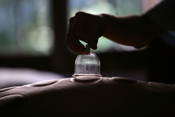 chinese cupping treatment