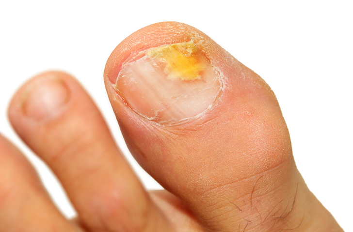 6 Tips To Stop Nail Fungus Before It Starts | BlackDoctor