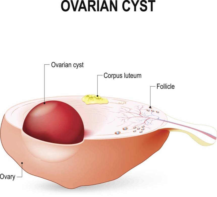 The 6 Types Of Ovarian Cysts (And What You Can Do About Them ...