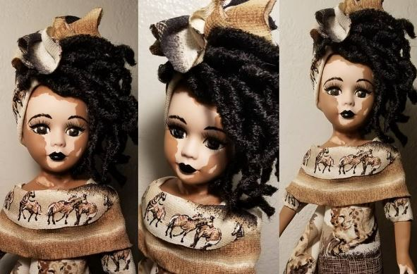 Kay Customs vitiligo dolls