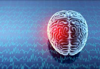 Sodium Buildup in Brain Linked to Disability in MS Patients