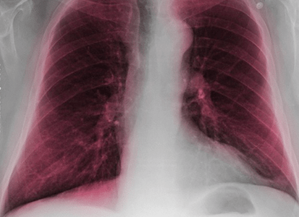 An x-ray of a smoker's lungs