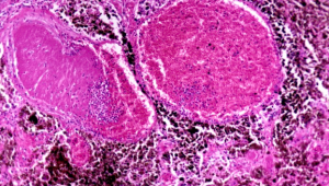 microscopic image of melanoma