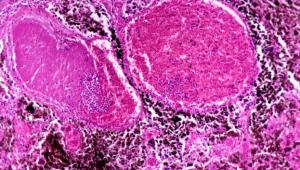 microscopic image of melanoma