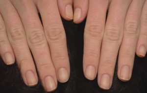 hands showing healthy nails