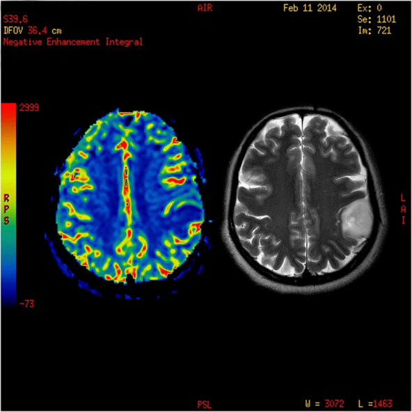 Perfusion MRI imaging of a benign brain tumor