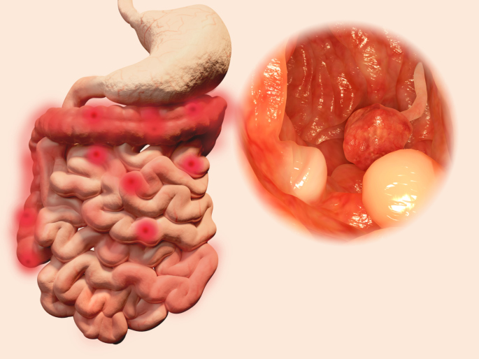 Polyps in the gastrointestinal tract
