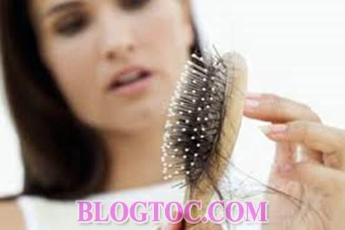 Causes of hair loss that we pay little attention to in everyday life 1