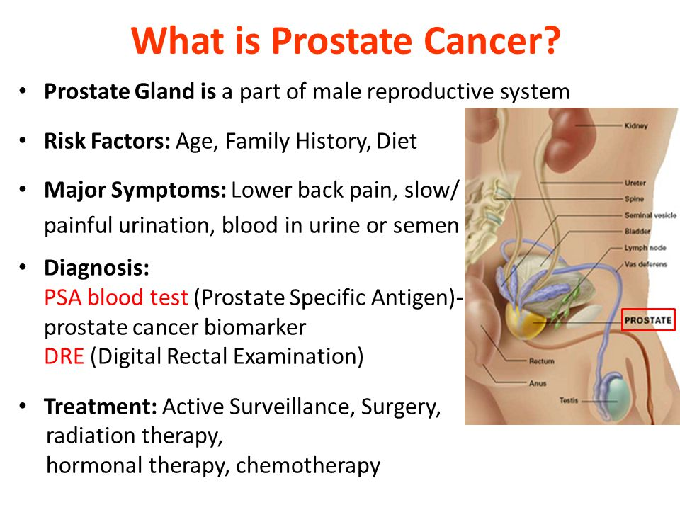prostate cancer in african american men 2 essay African-american men are 16 times more likely to get prostate cancer, and more than twice as likely to die from it morris is very lucky that all this happened back in 2004 – because today, his cancer might not have been detected so early.