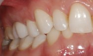 Case 23- After All-ceramic crown by Dr Lopez