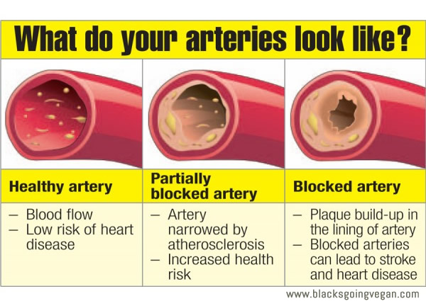 Healthy arteries vs clogged blocked arteries