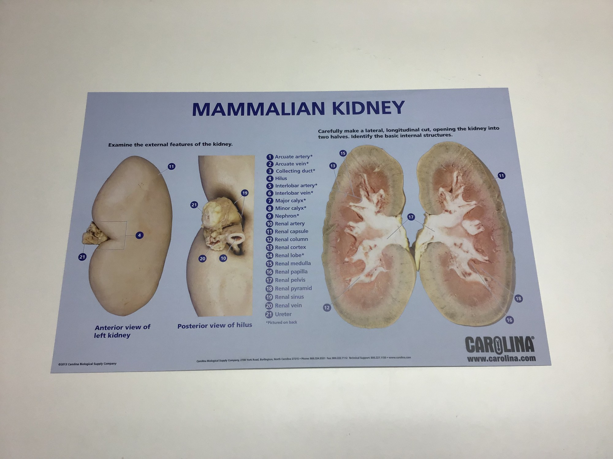hight resolution of kidney dissection chart
