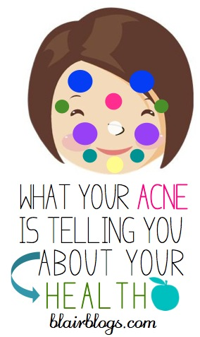 Everything You Ever Wanted To Know About Women's Adult Acne