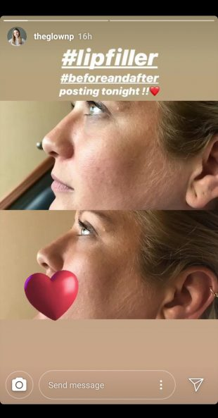 Instagram story of before and after lip filler treatments