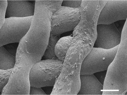 Une image microscopique d'un oeuf de souris immature, entouré de cellules de soutien, après avoir été logé dans un échafaudage bioprothésique pendant six jours.