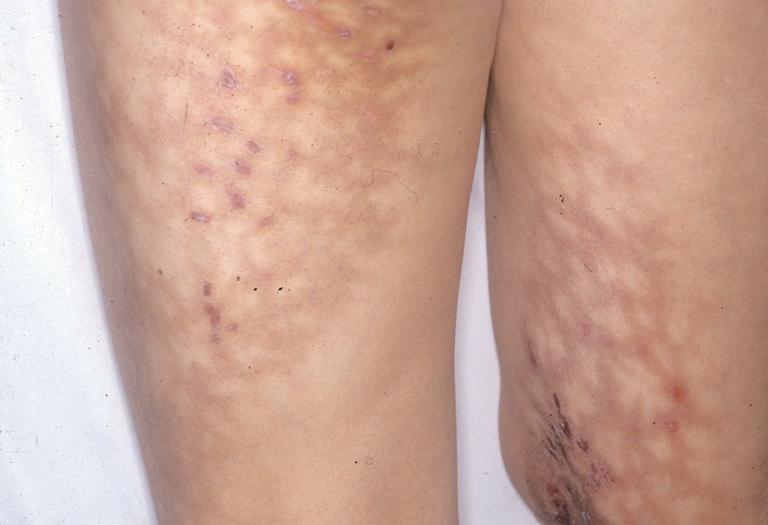 11血管炎・紫斑・脈管疾患 - 皮膚科専門醫試験勉強されている方 ...